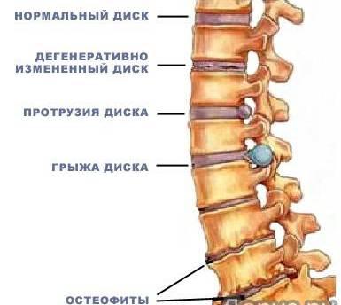 Лечение артроза в санаториях приморского края